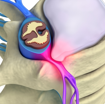 rendered illustration of herniated disk